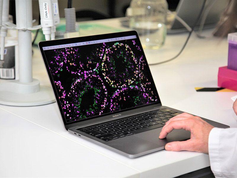 Image of testis on a laptop