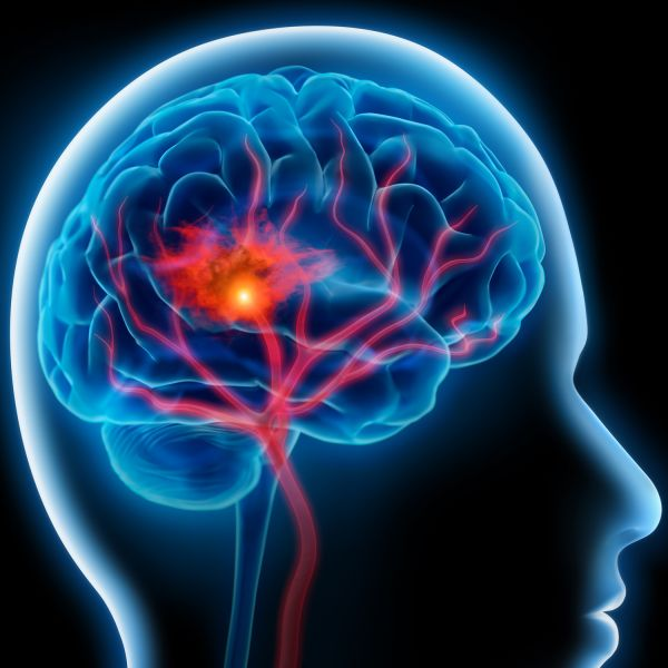 Ph.D. Scholarship Available in Translational Stroke Research