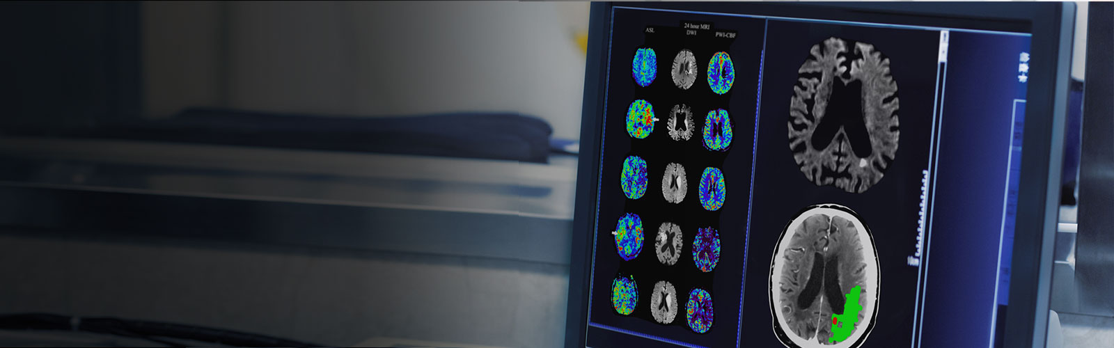 Improving outcomes for regional stroke patients