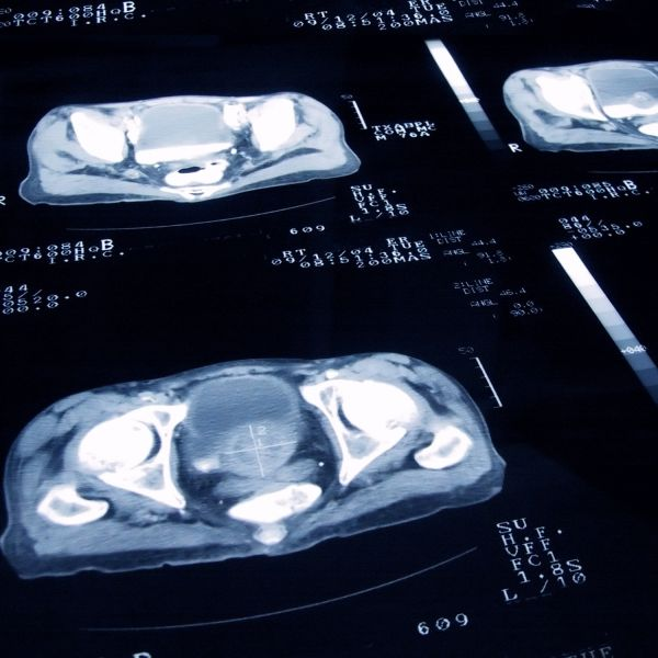 Ten year prostate cancer trial proves optimal treatment duration