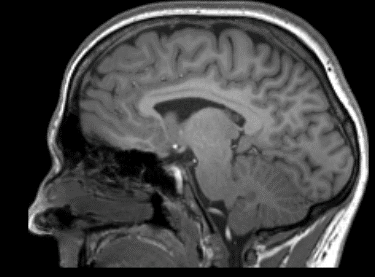 Image of brain and head scan