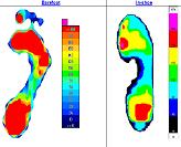 Footprint Pressure
