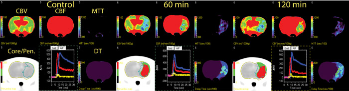 APPLICATION OF CBF INFARCT CORE AND PENUMBRA THRESHOLDS TO A PERMANENT MCAO ANIMAL OVER TIME.